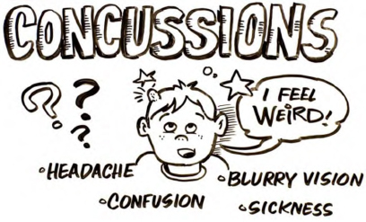 New Concussion Recommendations For Kids >> Pediatric Guidelines Concussions Ontario